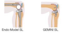 LINK Endo-Model SL